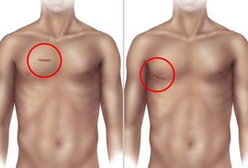 cardiochirurgia mininvasiva