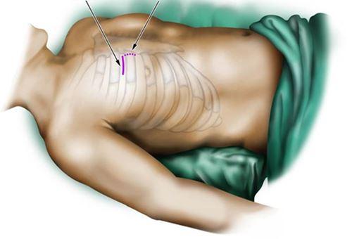 Impatto cardiochirurgia mininvasiva