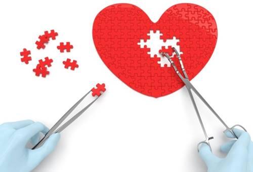 centro cardiochirurgico come scegliere